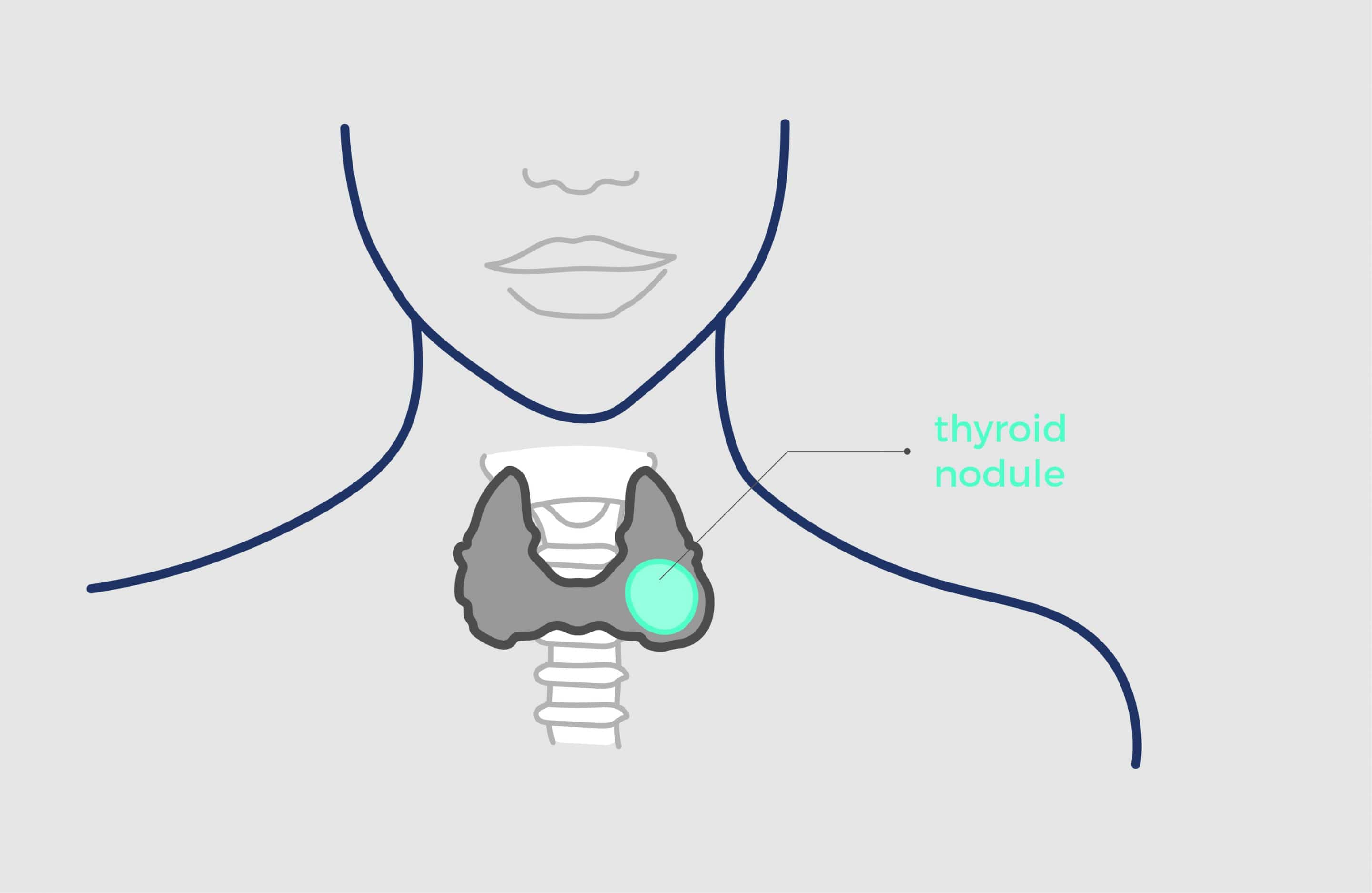 Thyroid Nodules Echotherapy